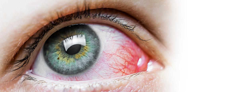 Centro-de-Catarata-BLOG-Olhos-vermelhos.jpg