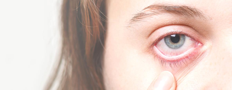 Alergia-nos-olhos-conheca-os-principais-tipos-Centro-de-Catarata-Madureira.png